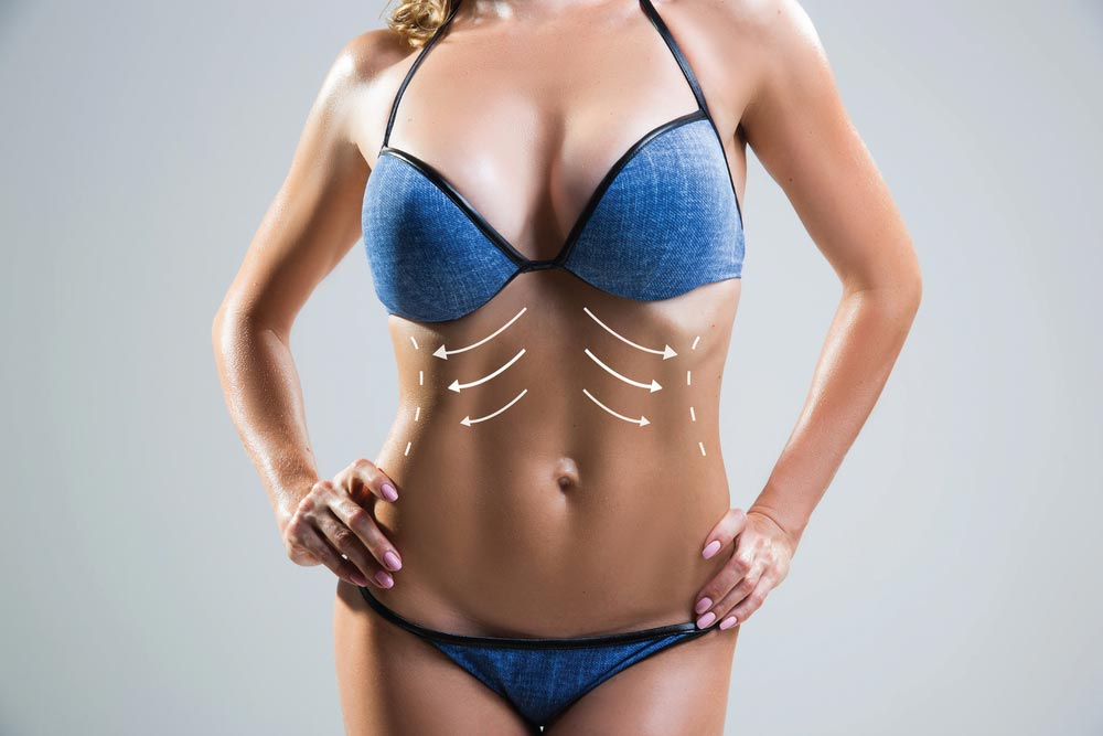 liposuction is amazing