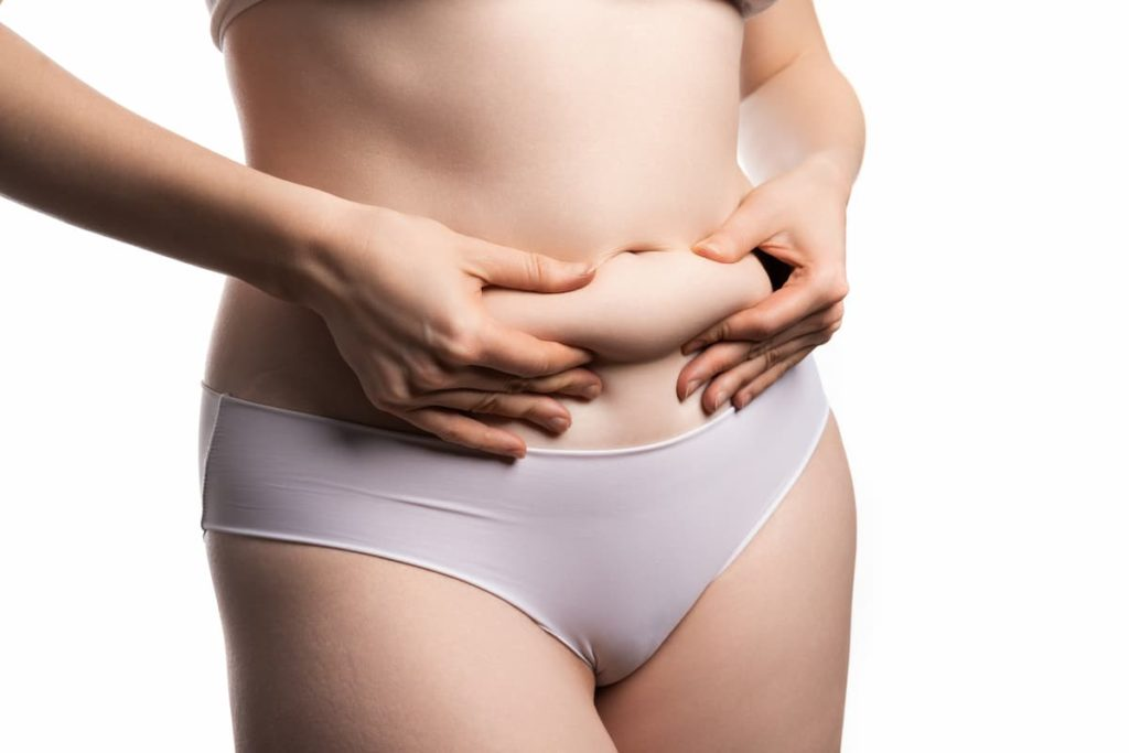 flank liposuction